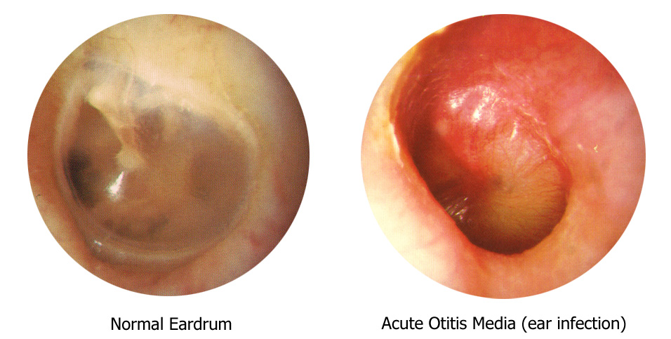 The Appearance of a Middle Ear Infection